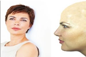 pelucas oncológicas baratas precios